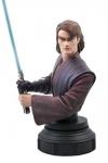 Star Wars The Clone Wars Büste 1/7 Anakin Skywalker 15 cm Limitiert auf 2000 Stück.